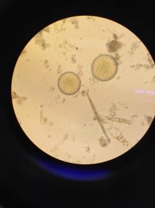 Lycka! Äggen har hällts i skålen och  spermiern börjar simma ut ur sina små påsar för att befrukta dem.