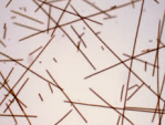 Planktotrix rubescens