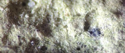 kiselalger i mikroskop